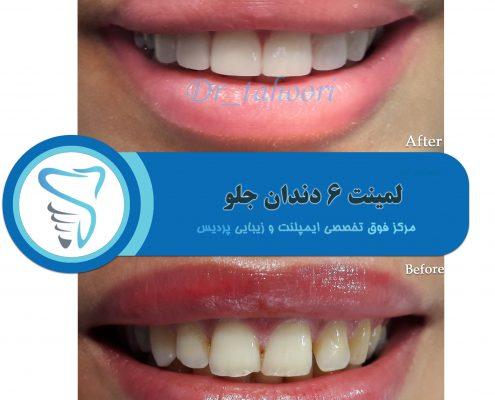نمونه کار لمینت دندان