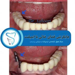 درمان ایمپلنت در کلینیک دندانپزشکی پردیس