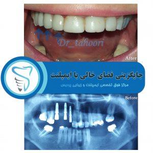 نمونه درمان ایمپلنت در کلینیک دندانپزشکی پردیس