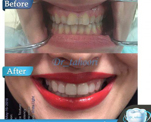 لمینیت دندان با رنگ بسیار طبیعی