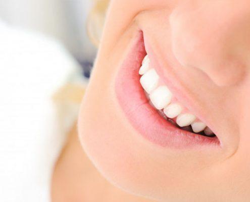 مراقبت دندان های لمینیت شده
