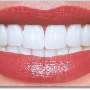 دندان های لمینت شده