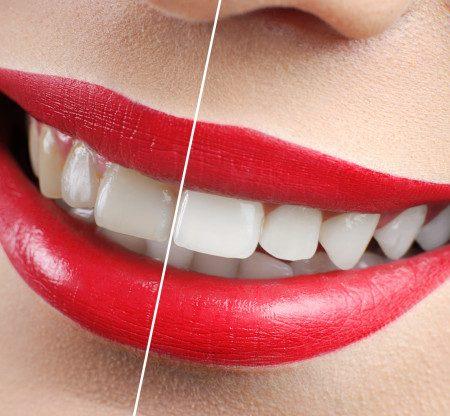 بلیچینگ یا سفیدکردن دندان ها