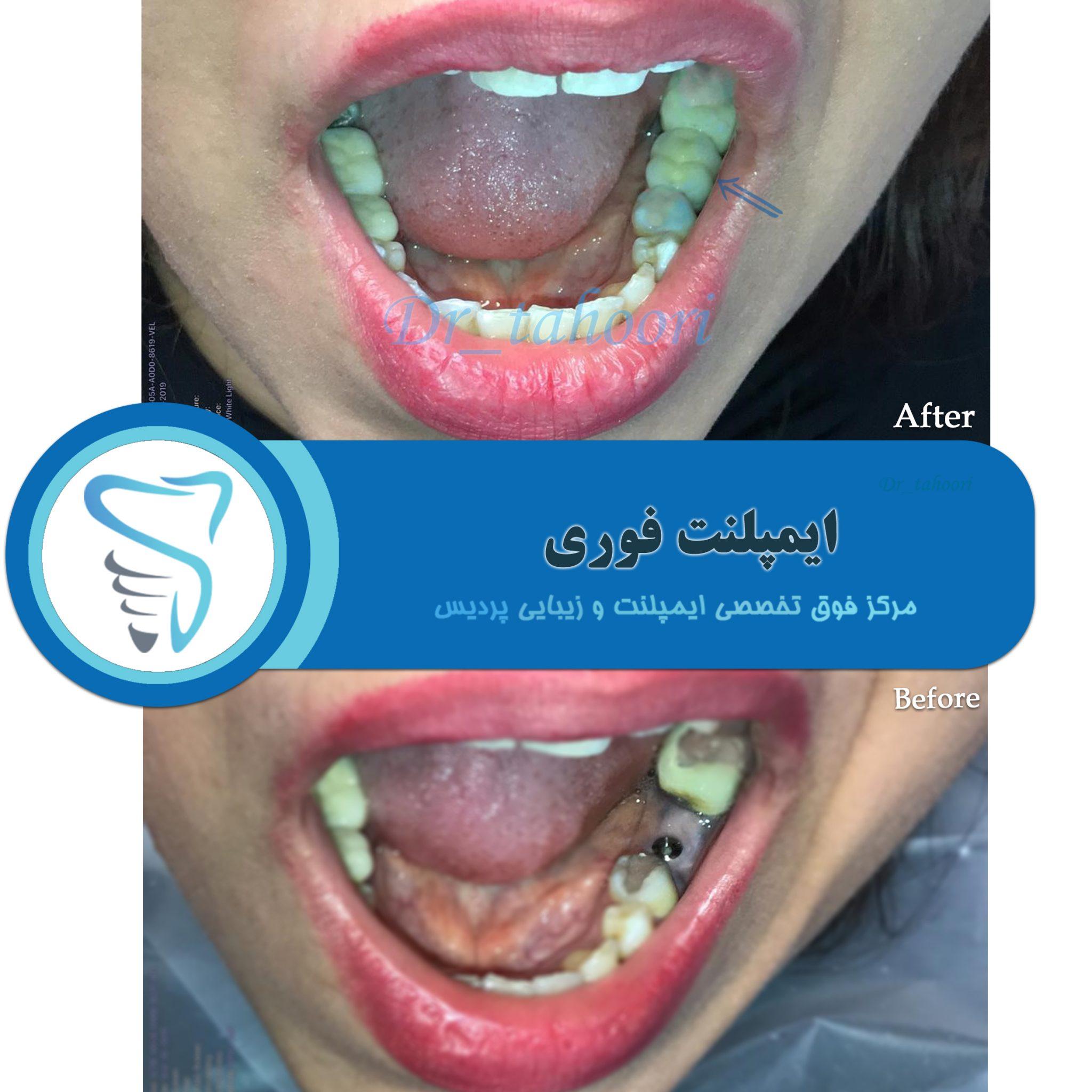 ایمپلنت فوری دندان
