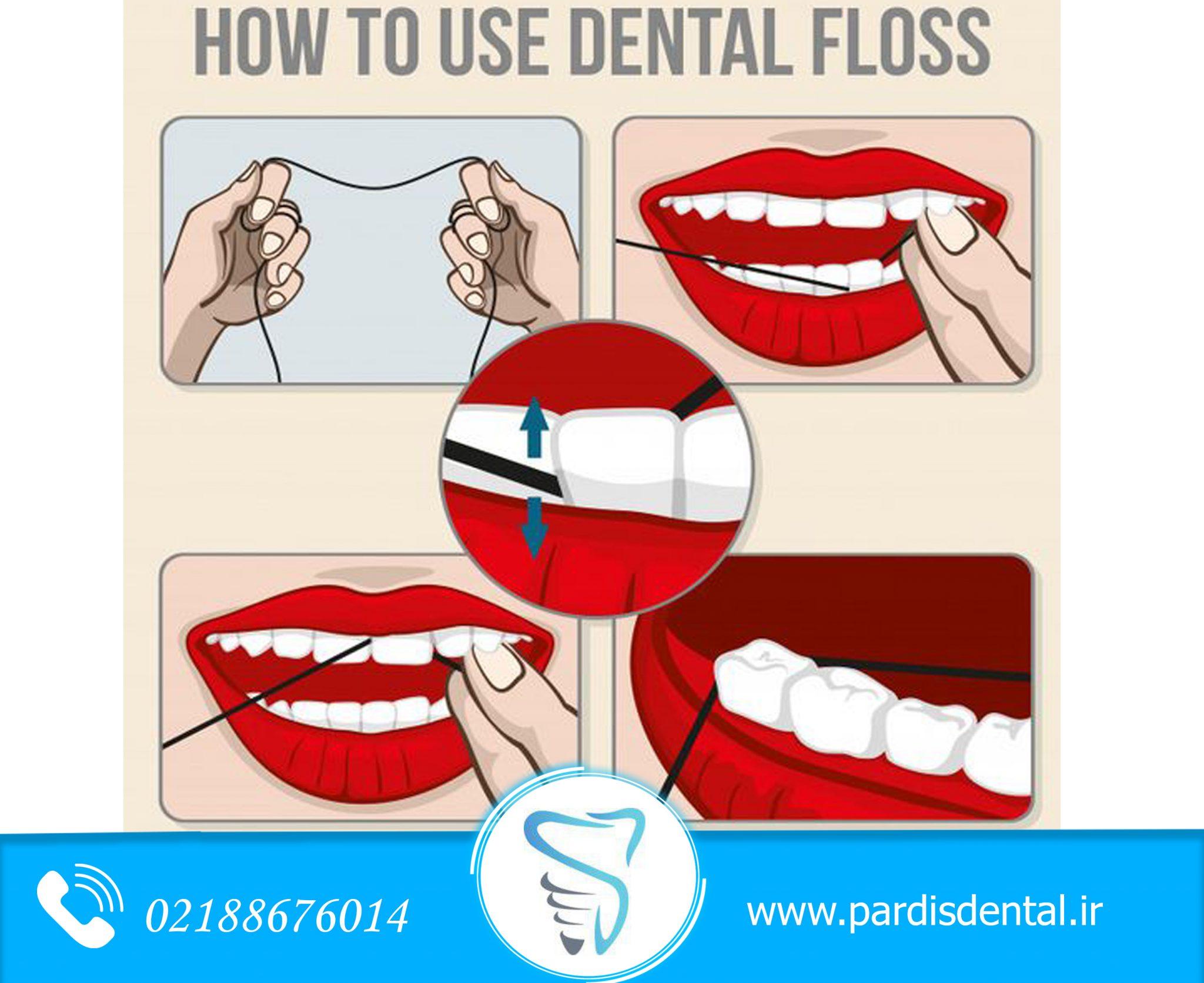 مراحل نخ دندان کشیدن