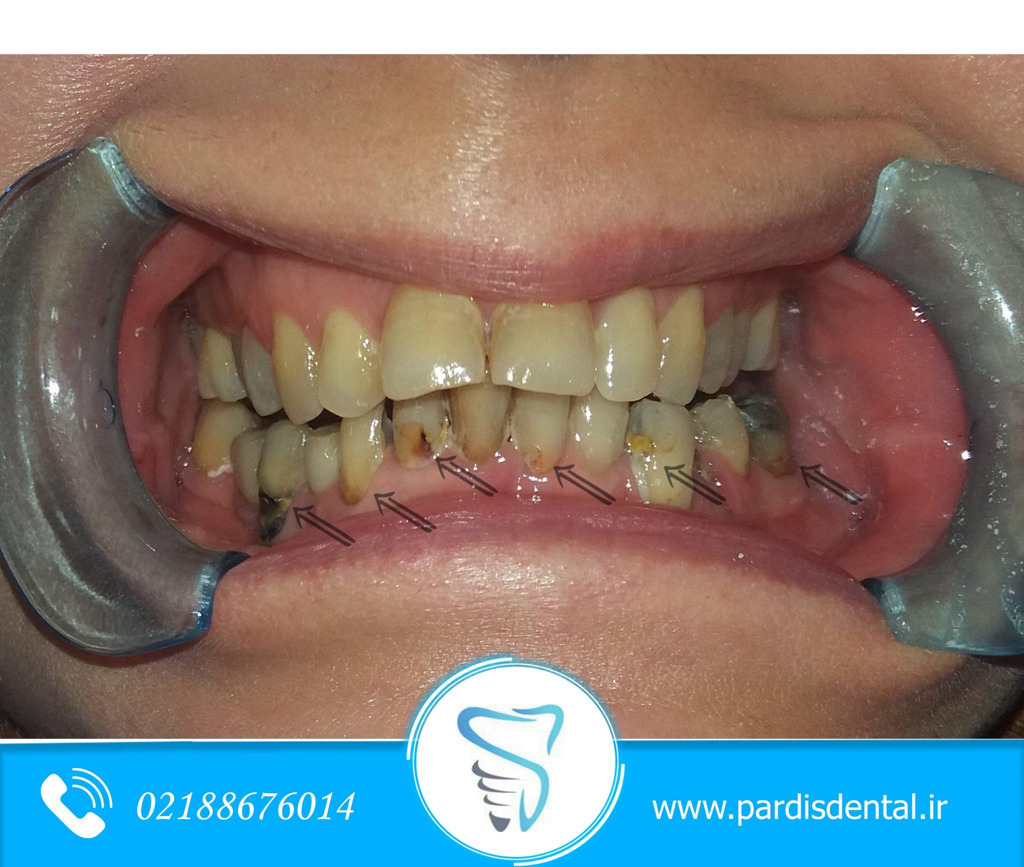نقش بزاق در پوسیدگی دندان