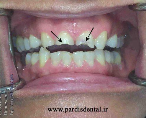 بیمار اروژن دندانی