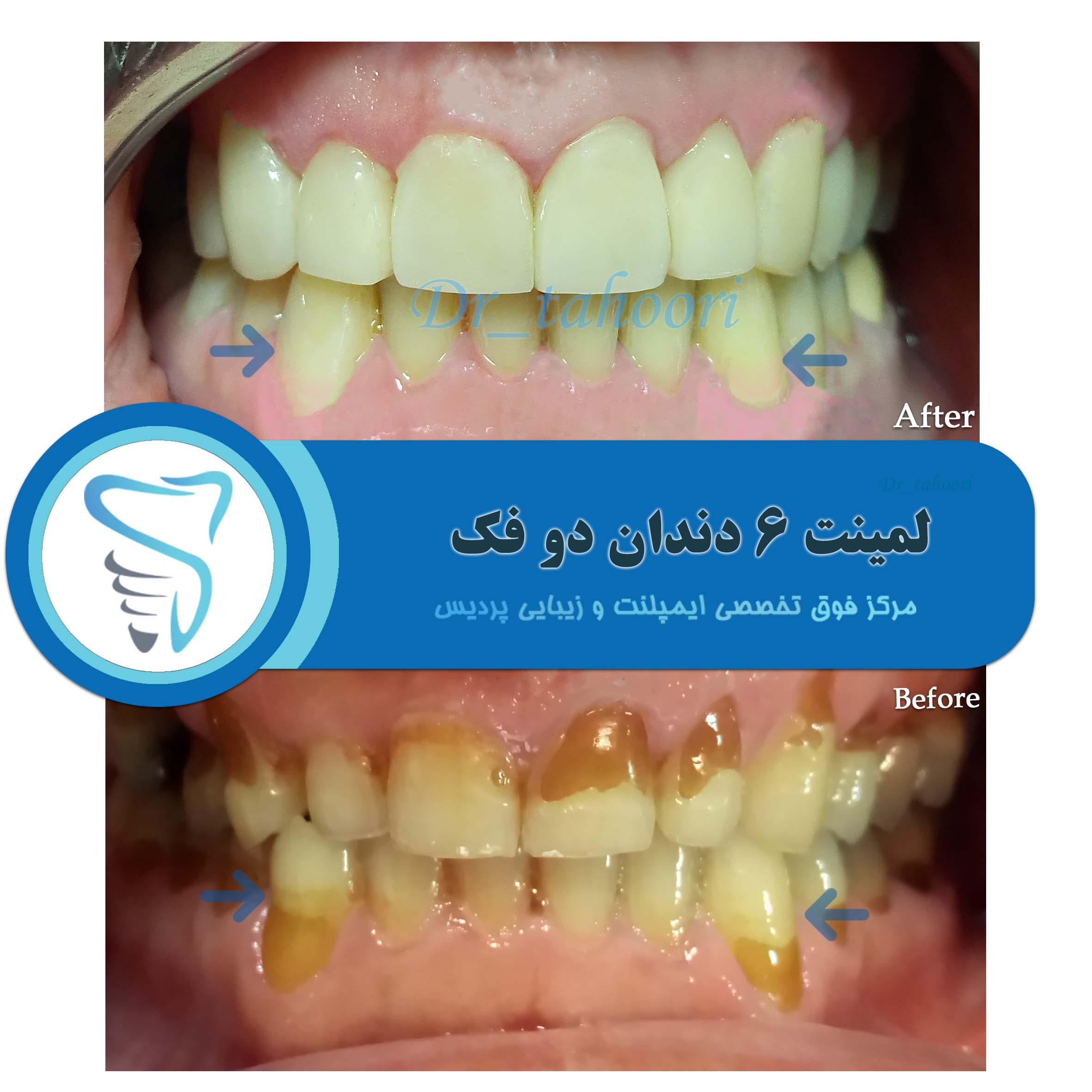 تغییر فلور دهان و ایجاد پوسیدگی دندان