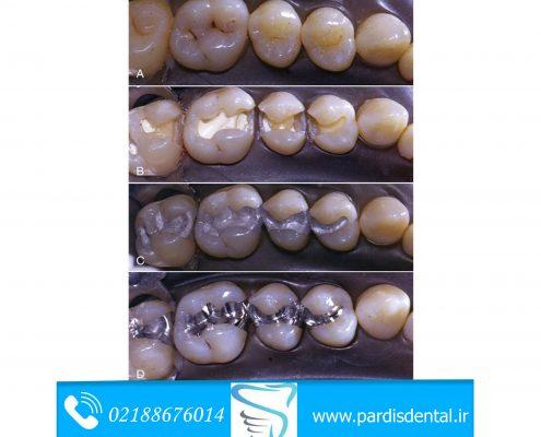 مراحل ترمیم دندان با آمالگام
