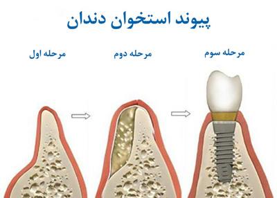تحلیل استخوان و مراحل پیوند استخوان