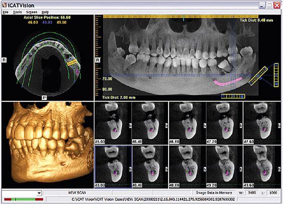 رادیوگرافی دیجیتال در دندانپزشکی