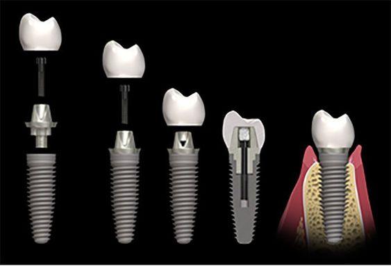 اجزای مختلف ایمپلنت دندان
