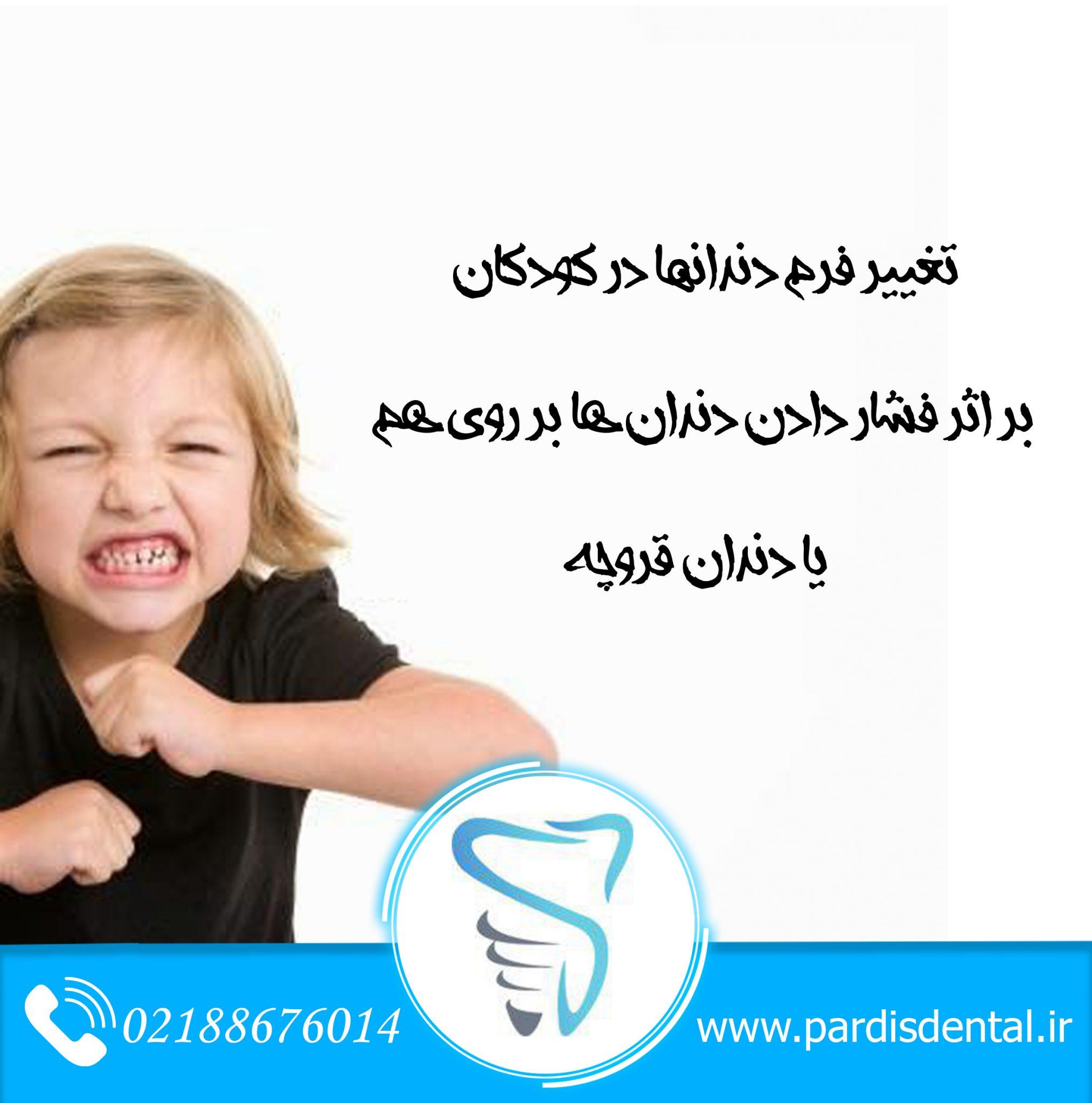 دندان قروچه و عادات غلط دهانی