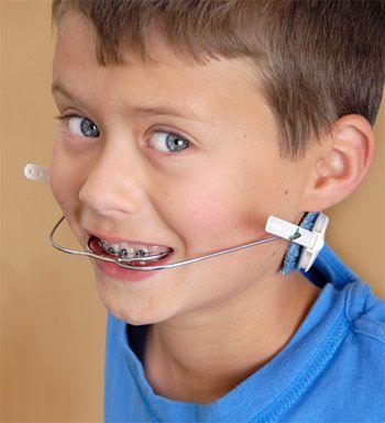 ارتودنسی جهت پیشگیری از پوسیدگی دندان ها