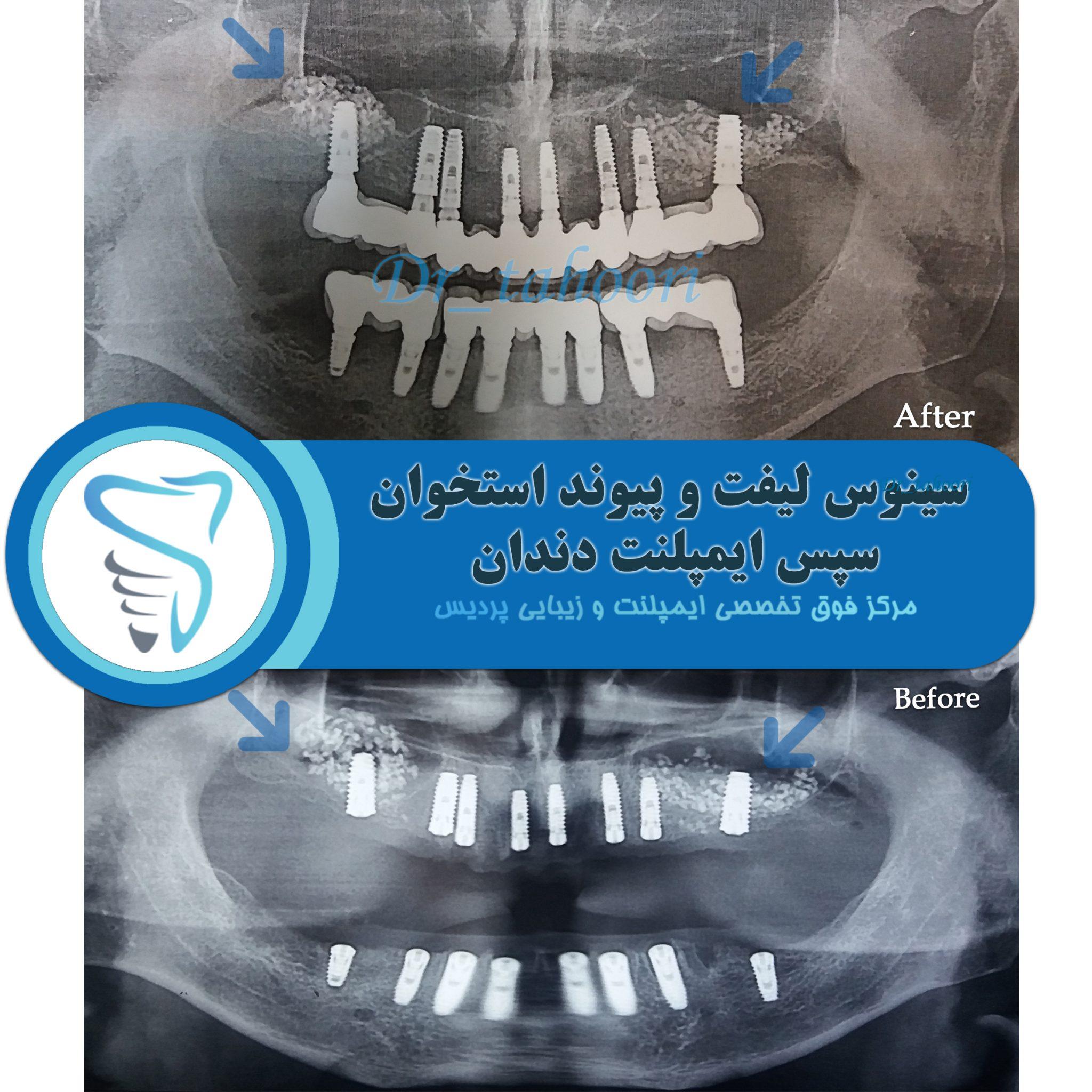 نمونه کار کلینیک دندانپزشکی پردیس