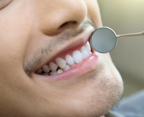 آقایان بیشترین ترومای دندان را دارند