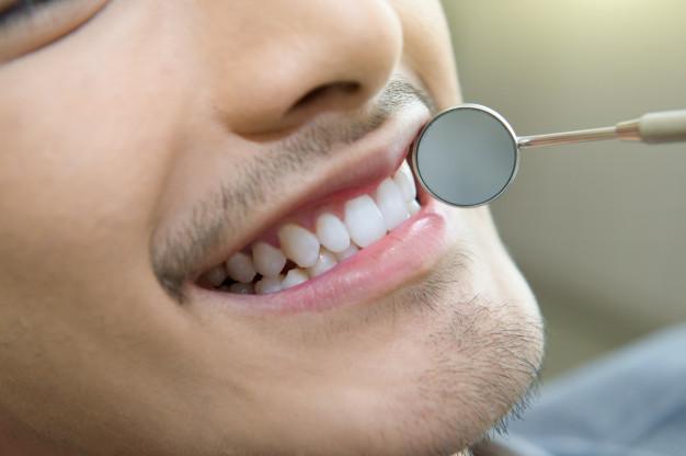 فلور طبیعی دهان