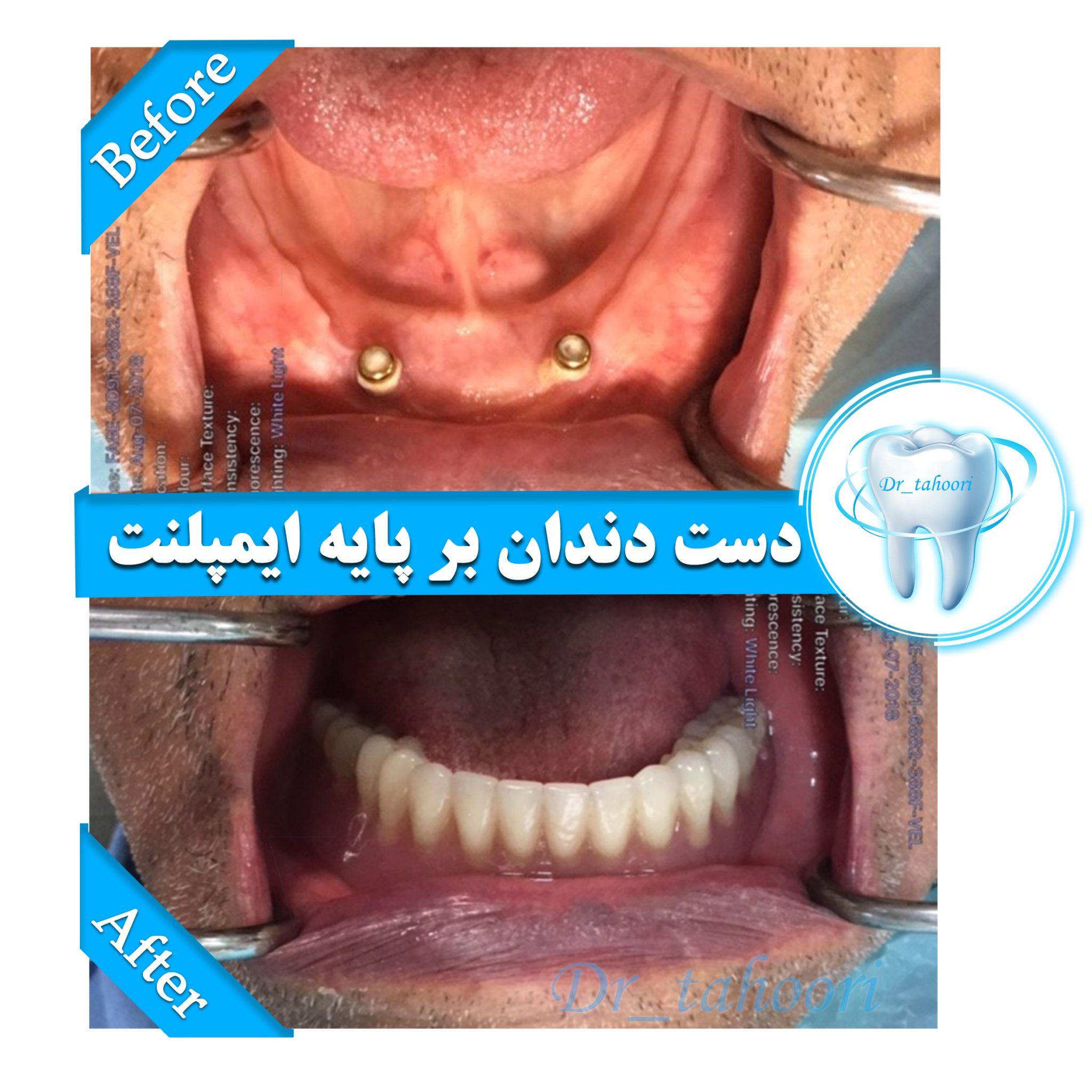اوردنچر دندانها یا دست دندان بر پایه ایمپلنت