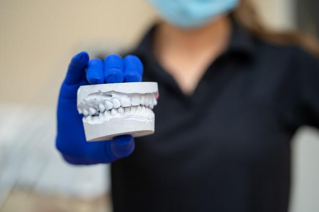 قالب گیری کل دندانها